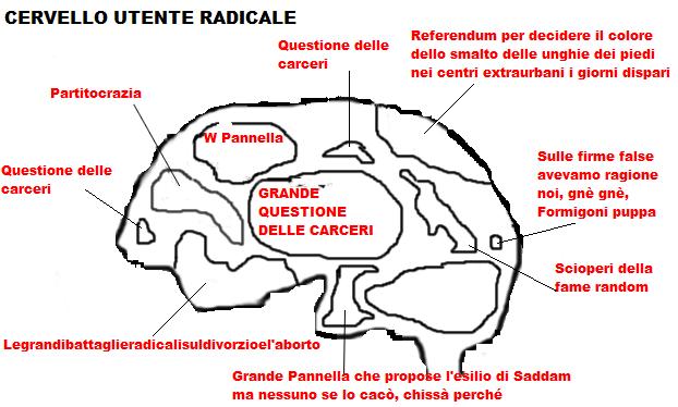 cervello tre